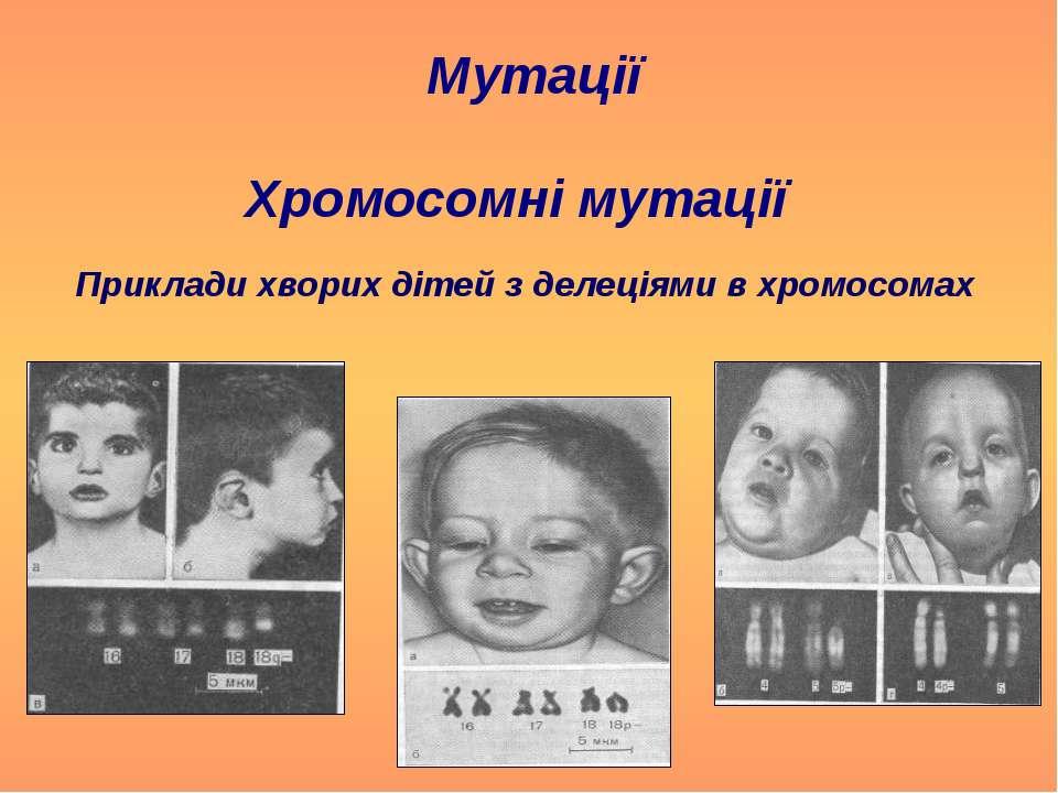 Хромосомні мутації Мутації Приклади хворих дітей з делеціями в хромосомах