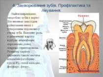 4. Захворювання зубів. Профілактика та лікування. Найпоширенішою хворобою зуб...