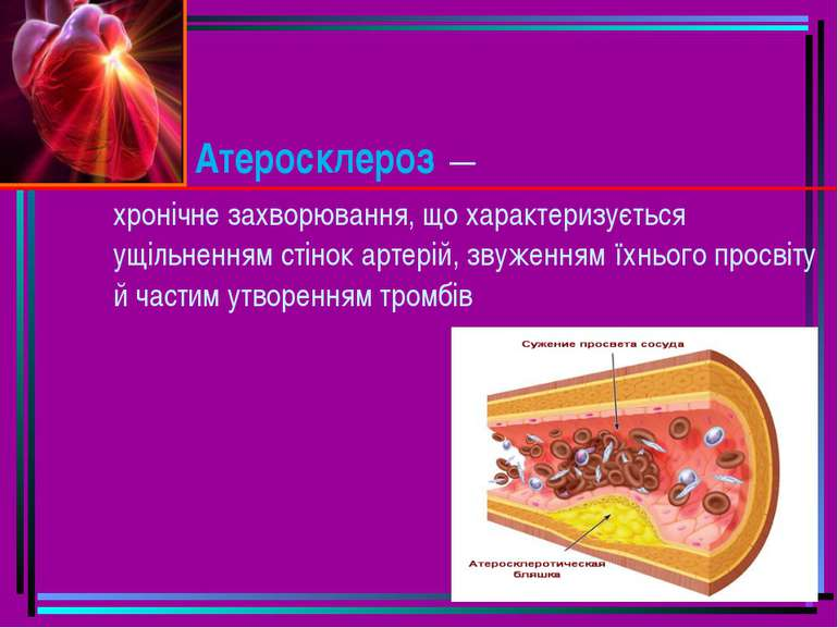 Атеросклероз — хронічне захворювання, що характеризується ущільненням стінок...