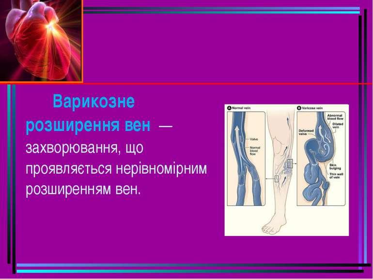 Варикозне розширення вен — захворювання, що проявляється нерівномірним розши...