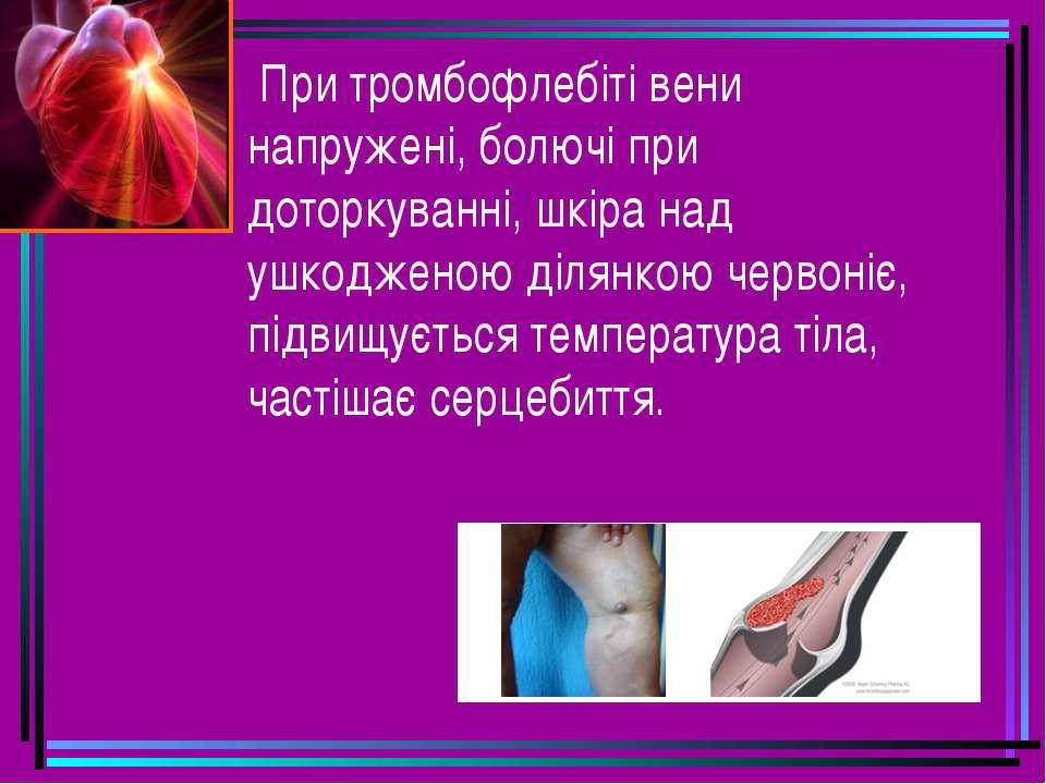 При тромбофлебіті вени напружені, болючі при доторкуванні, шкіра над ушкоджен...