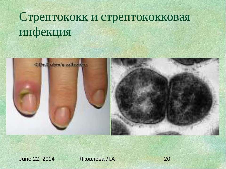 Стрептококк и стрептококковая инфекция Яковлева Л.А.