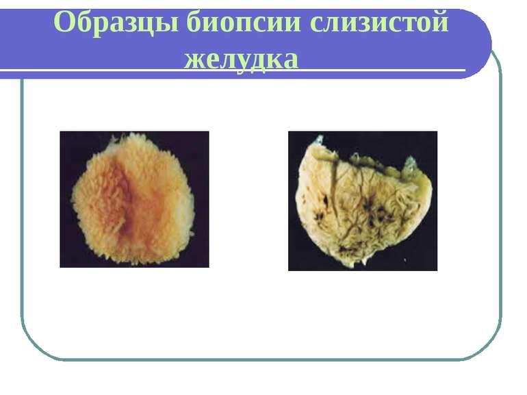 Образцы биопсии слизистой желудка ЗДОРОВЫЙ С ДЕФИЦИТОМ ВИТАМИНА В12
