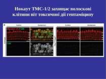 Нокаут ТМС-1/2 захищає волоскові клітини віт токсичної дії гентаміцину