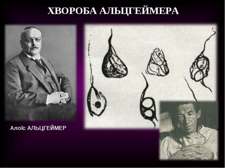 Алоїс АЛЬЦГЕЙМЕР ХВОРОБА АЛЬЦГЕЙМЕРА