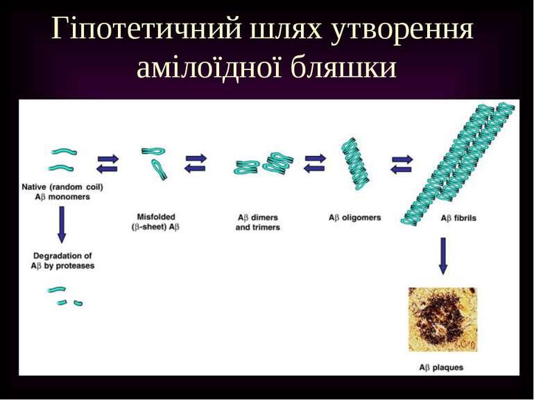 Гіпотетичний шлях утворення амілоїдної бляшки