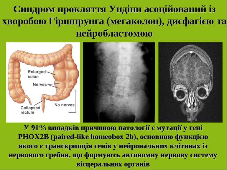 Синдром прокляття Ундіни асоційований із хворобою Гіршпрунга (мегаколон), дис...