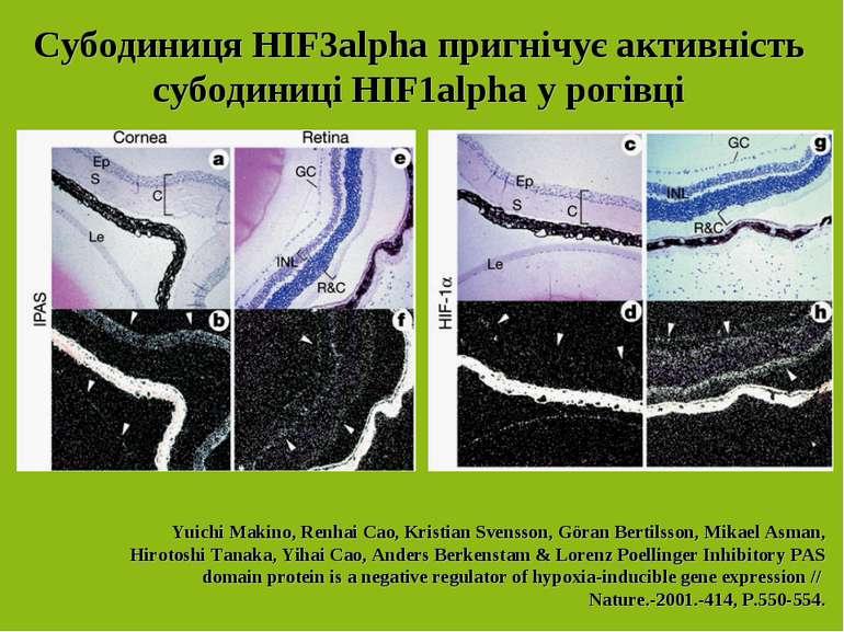 Субодиниця НІF3alpha пригнічує активність субодиниці НІF1alpha у рогівці Yuic...