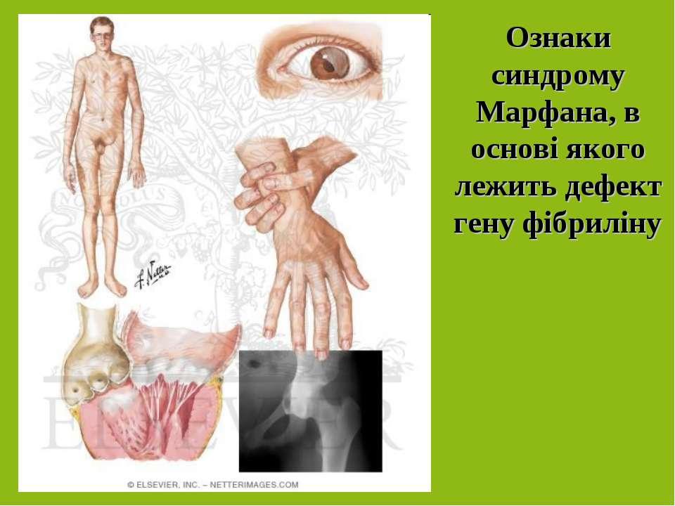 Ознаки синдрому Марфана, в основі якого лежить дефект гену фібриліну