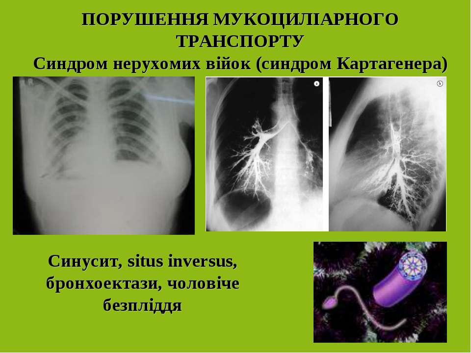 ПОРУШЕННЯ МУКОЦИЛІАРНОГО ТРАНСПОРТУ Синдром нерухомих війок (синдром Картаген...