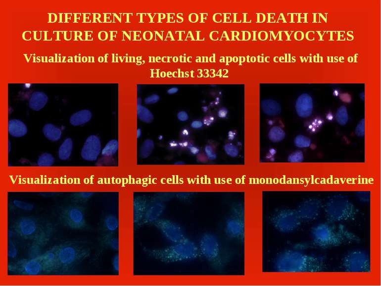 DIFFERENT TYPES OF CELL DEATH IN CULTURE OF NEONATAL CARDIOMYOCYTES Visualiza...