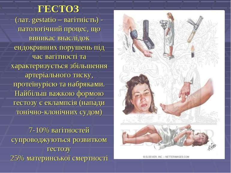 ГЕСТОЗ (лат. gestatio – вагітність) - патологічний процес, що виникає внаслід...