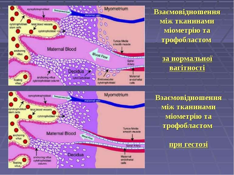 Взаємовідношення між тканинами міометрію та трофобластом за нормальної вагітн...