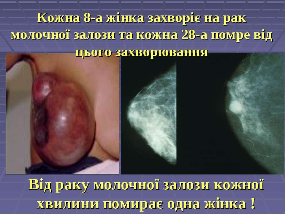 Від раку молочної залози кожної хвилини помирає одна жінка ! Кожна 8-а жінка ...