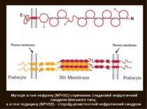 Мутація в гені нефрину (NPHS1) спричинює спадковий нефротичний синдром фінськ...