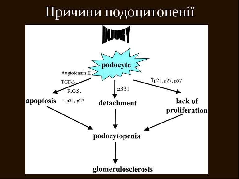 Причини подоцитопенії