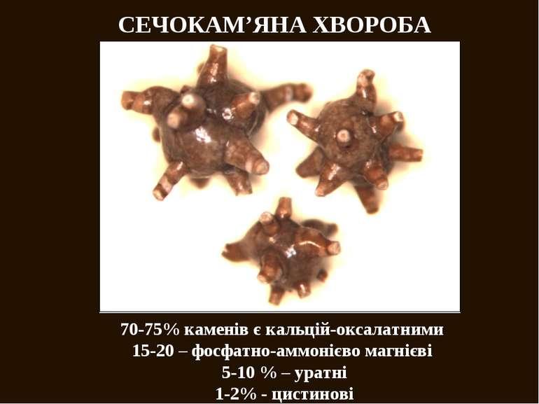 СЕЧОКАМ'ЯНА ХВОРОБА 70-75% каменів є кальцій-оксалатними 15-20 – фосфатно-амм...