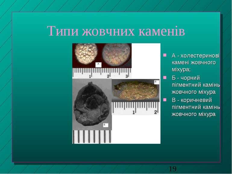 Типи жовчних каменів А - холестеринові камені жовчного міхура; Б - чорний піг...