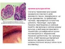 органна культура клітин Спочатку тканинними культурами називали експлантанти ...