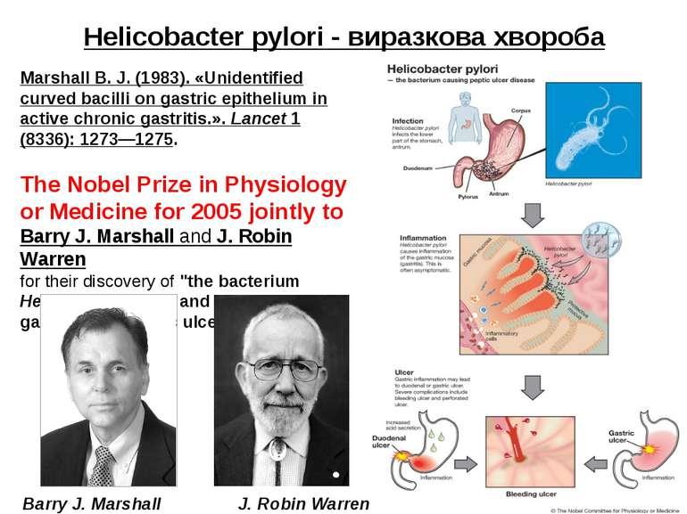 Helicobacter pylori - виразкова хвороба Marshall B. J. (1983). «Unidentified ...