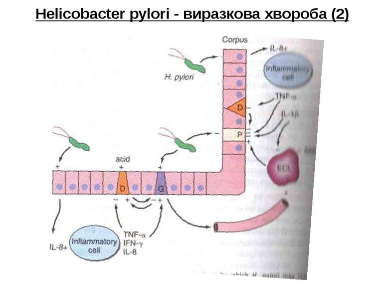 Helicobacter pylori - виразкова хвороба (2)
