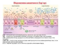 Порушення кишечного бар'єру pIgR – полімерний імуноглубуліновий рецептор, пер...