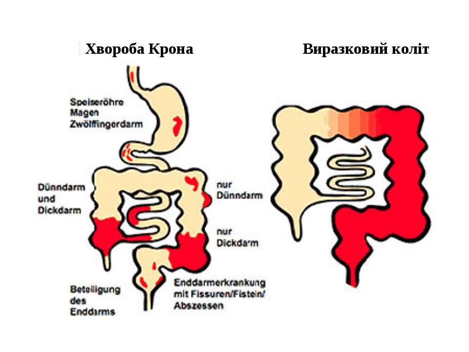 Хвороба Крона Виразковий коліт