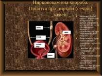 Нирковокам яна хвороба. Поняття про ниркові (сечові) камені Ниркові (сечові) ...