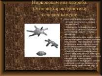 Нирковокам яна хвороба. Основні характеристики сечових каменів Величина, форм...