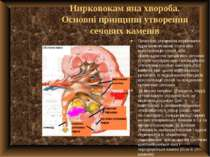 Нирковокам яна хвороба. Основні принципи утворення сечових каменів Початком у...