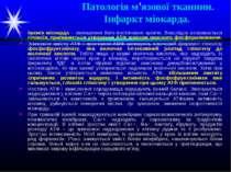 Патологія м'язової тканини. Інфаркт міокарда. Ішемія міокарда – зменшення йог...