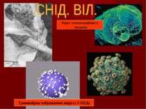 Тривимірне зображення вирусу СНІДу Вірус іммунодефіциту людини