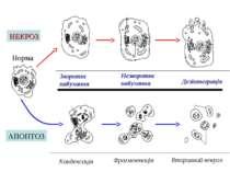 Зворотнє набухання Норма Збережена форма хроматину Мітохондрії змінені Розрив...