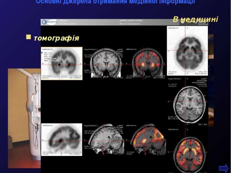 М.Кононов © 2009 E-mail: mvk@univ.kiev.ua * томографія В медицині Основні дже...