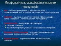 Морфологічна класифікація злоякісних новоутворів Рак – епітеліальні пухлини (...