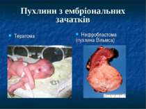 Пухлини з ембріональних зачатків Тератома Нефробластома (пухлина Вільмса)