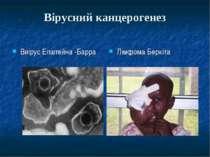 Вірусний канцерогенез Виірус Епштейна -Барра Лімфома Беркіта