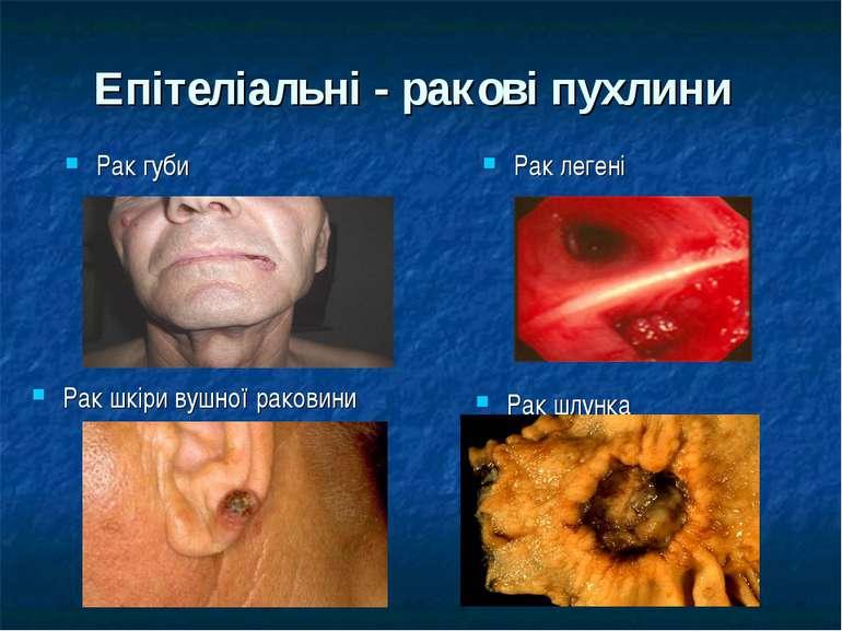 Епітеліальні - ракові пухлини Рак губи Рак легені Рак шкіри вушної раковини Р...