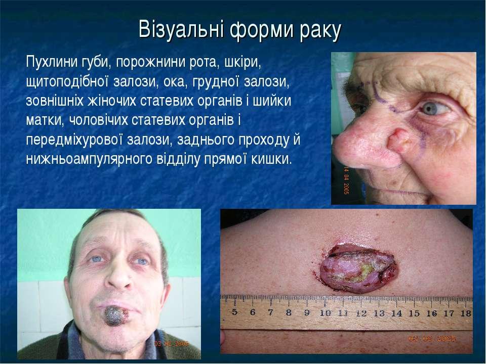 Візуальні форми раку Пухлини губи, порожнини рота, шкіри, щитоподібної залози...