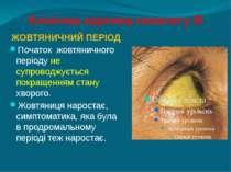 Клінічна картина гепатиту В ЖОВТЯНИЧНИЙ ПЕРІОД Початок жовтяничного періоду н...
