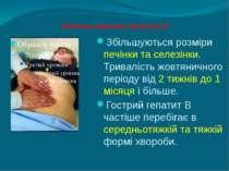 Клінічна картина гепатиту В Збільшуються розміри печінки та селезінки. Тривал...