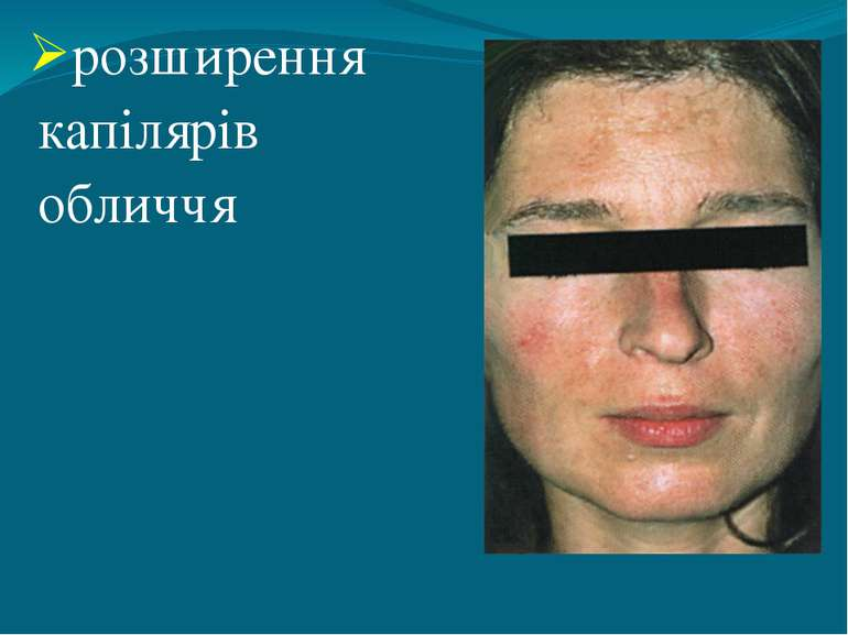 розширення капілярів обличчя