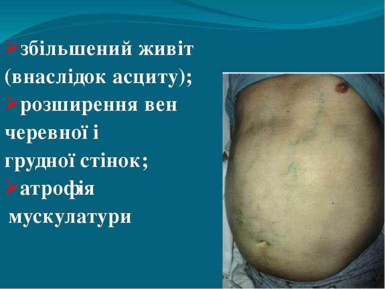 збільшений живіт (внаслідок асциту); розширення вен черевної і грудної стінок...