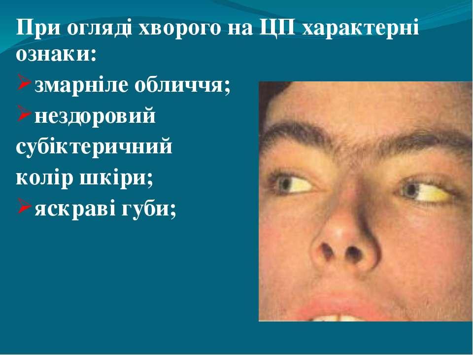 При огляді хворого на ЦП характерні ознаки: змарніле обличчя; нездоровий субі...