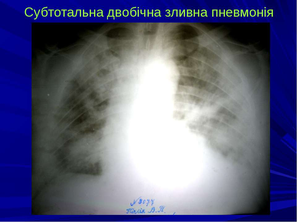 Субтотальна двобічна зливна пневмонія
