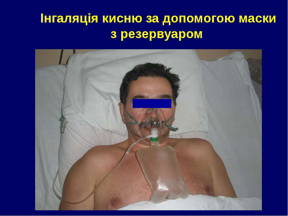 Інгаляція кисню за допомогою маски з резервуаром