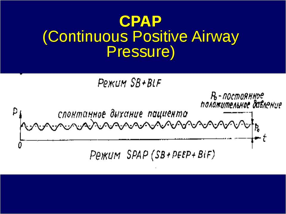 CPAP (Continuous Positive Airway Pressure)