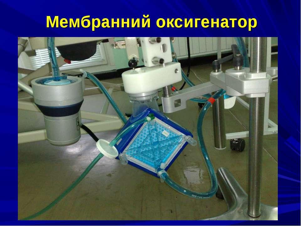 Мембранний оксигенатор