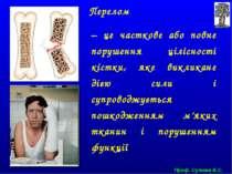 Проф. Сулима В.С. Перелом – це часткове або повне порушення цілісності кістки...