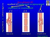 С 1 С 2 С 3 спіральний сегментарний неправильний Класифікація АО діафізарні 2...